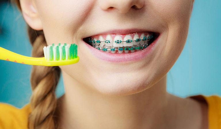 braces & oral hygiene
